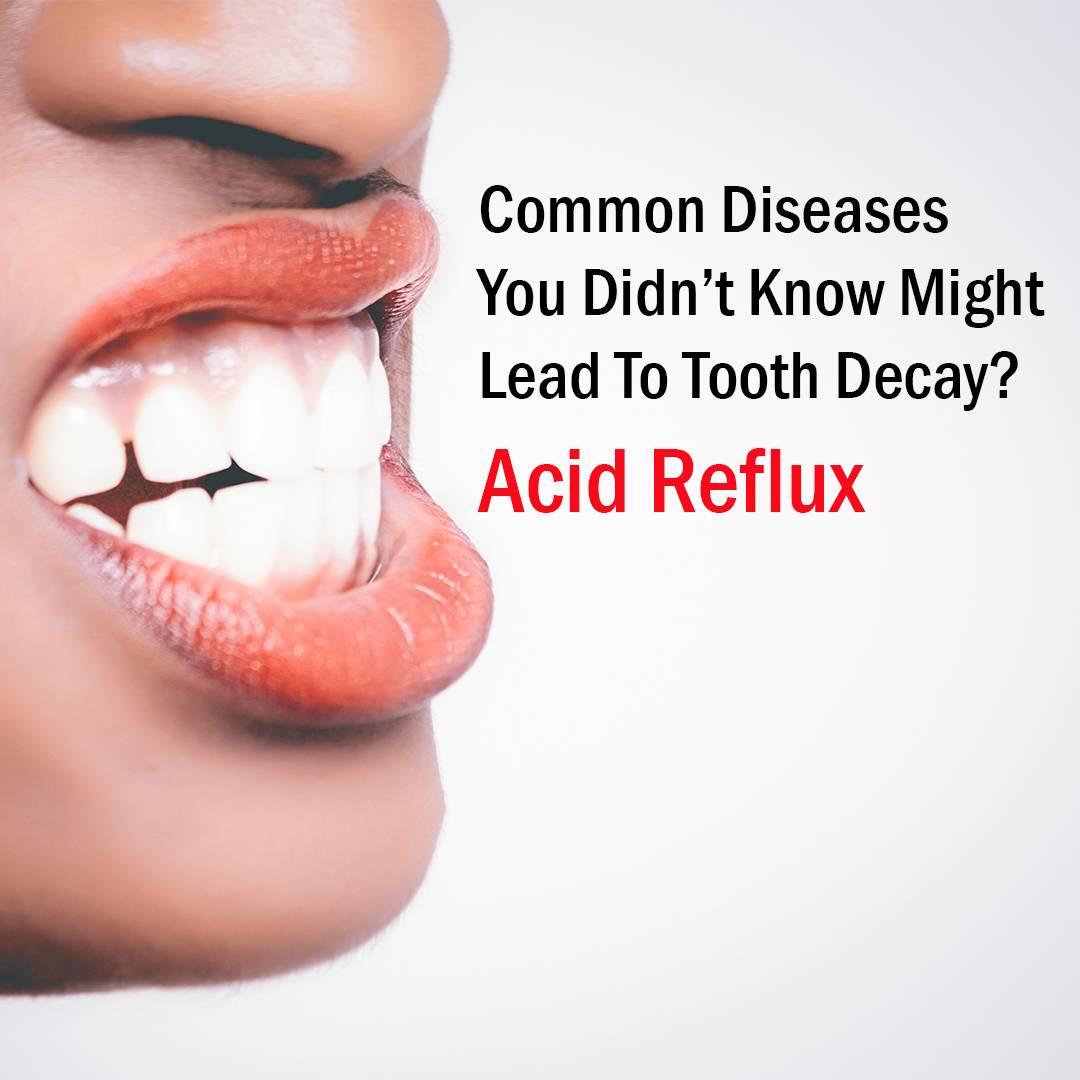 4 Common Diseases You Didn't Know Might Lead To Tooth Decay