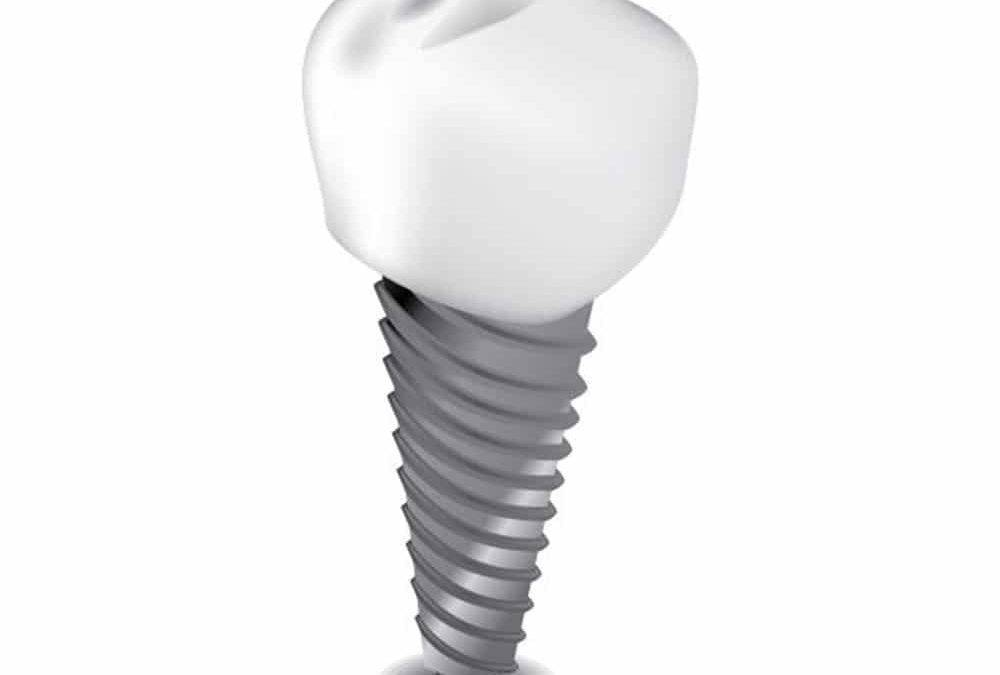 Why Dental Implants Use Titanium?