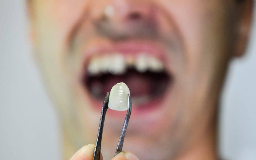 The Best Treatment To Replace Missing Teeth