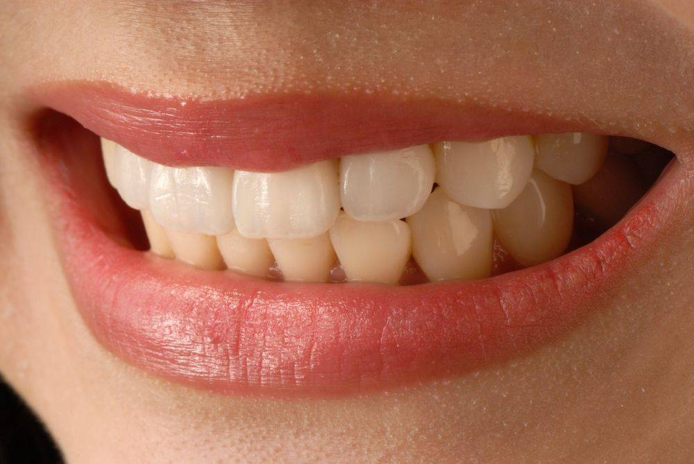 Need Veneers With Your Smile?