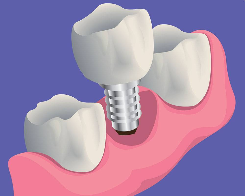 Does It Hurt To Get A Dental Implant?