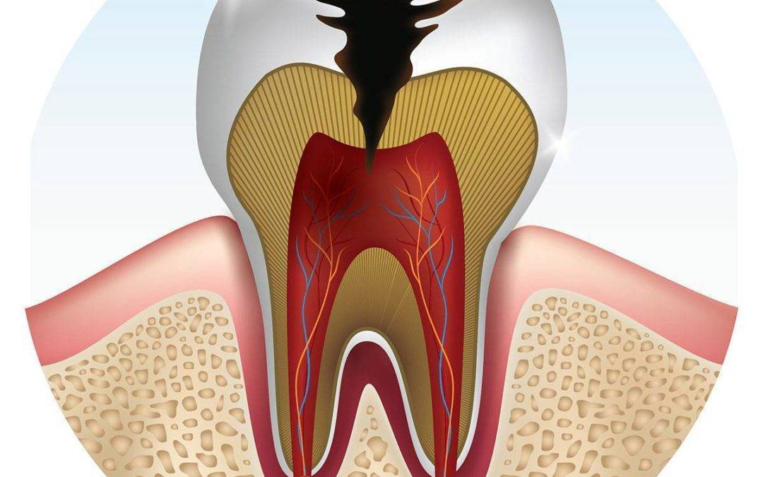 The Differences in Cavities, Decay & Caries
