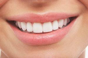 Periodontal Scaling and Root Planting