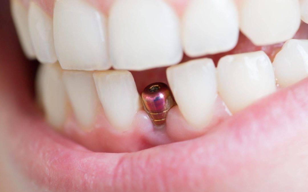 Avoiding Infection In Dental Implants