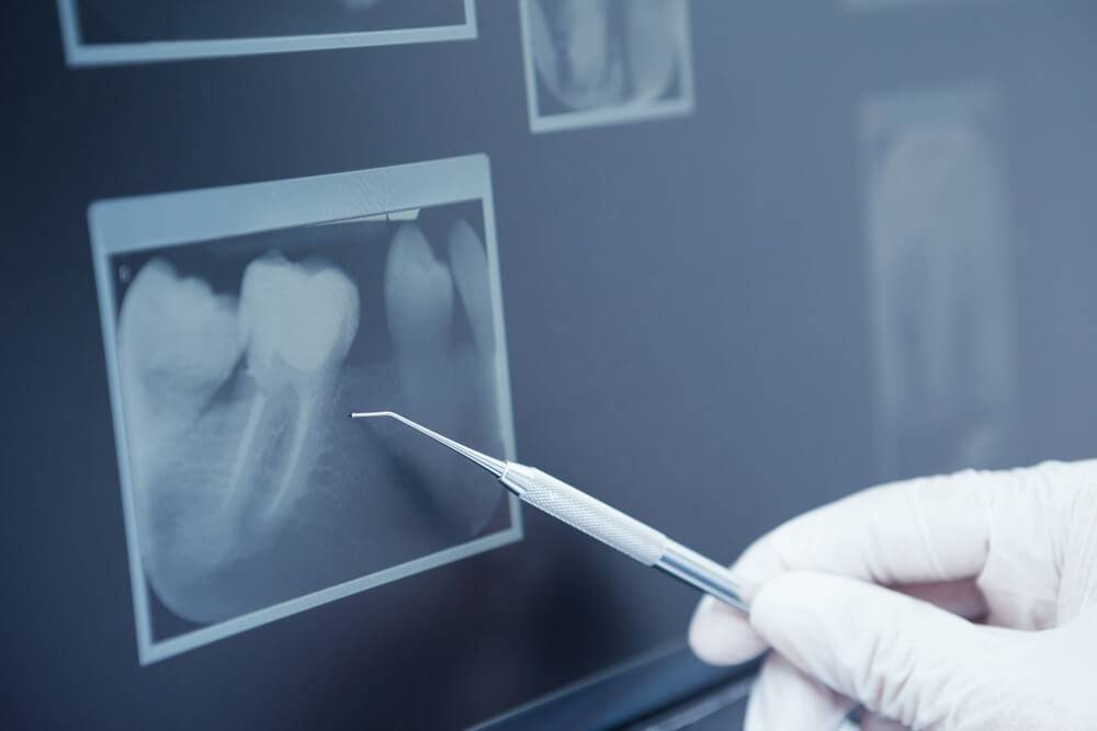 The Purpose Of Bone Augmentation