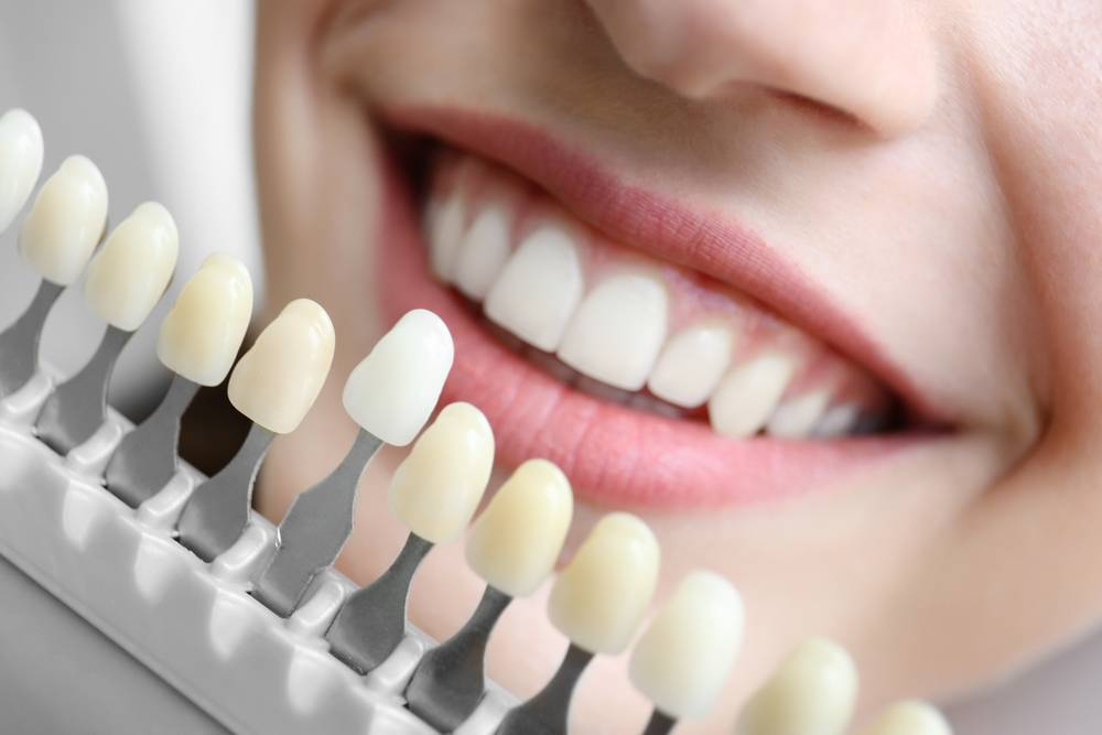 Denture Wearers are Becoming to Dental Implants