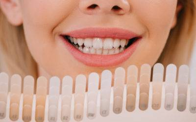The Magic Of Tooth Whitening!