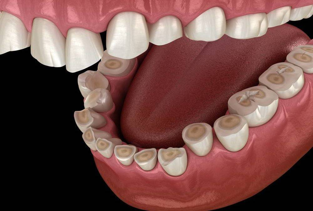 What Dental Erosion Can Do To Your Oral Health