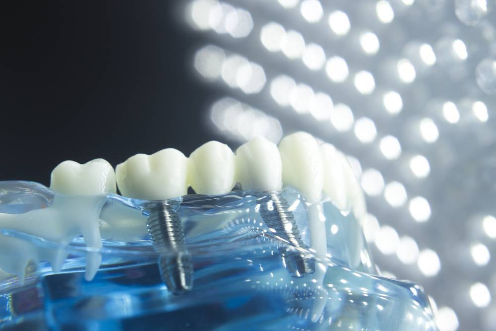 The Dental Issues That Needs Dental Implant