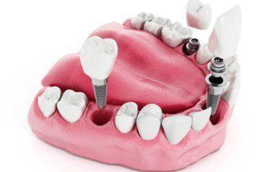 Preventing Infection In Dental Implants