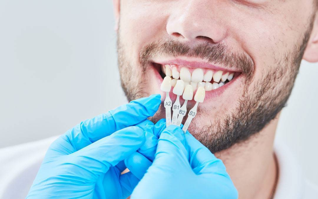 Important Things To Know When Getting Veneers