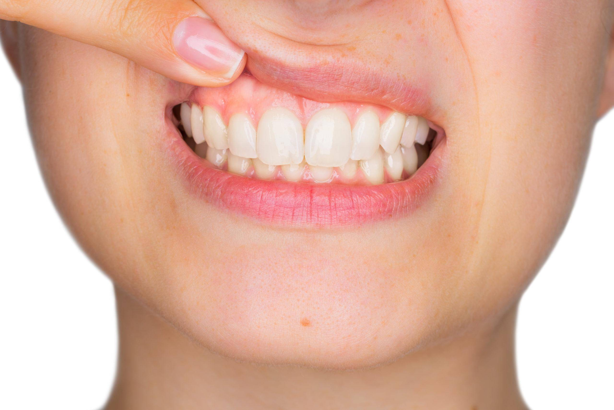 What Are The Benefits Of Gum Rejuvenation Therapy?
