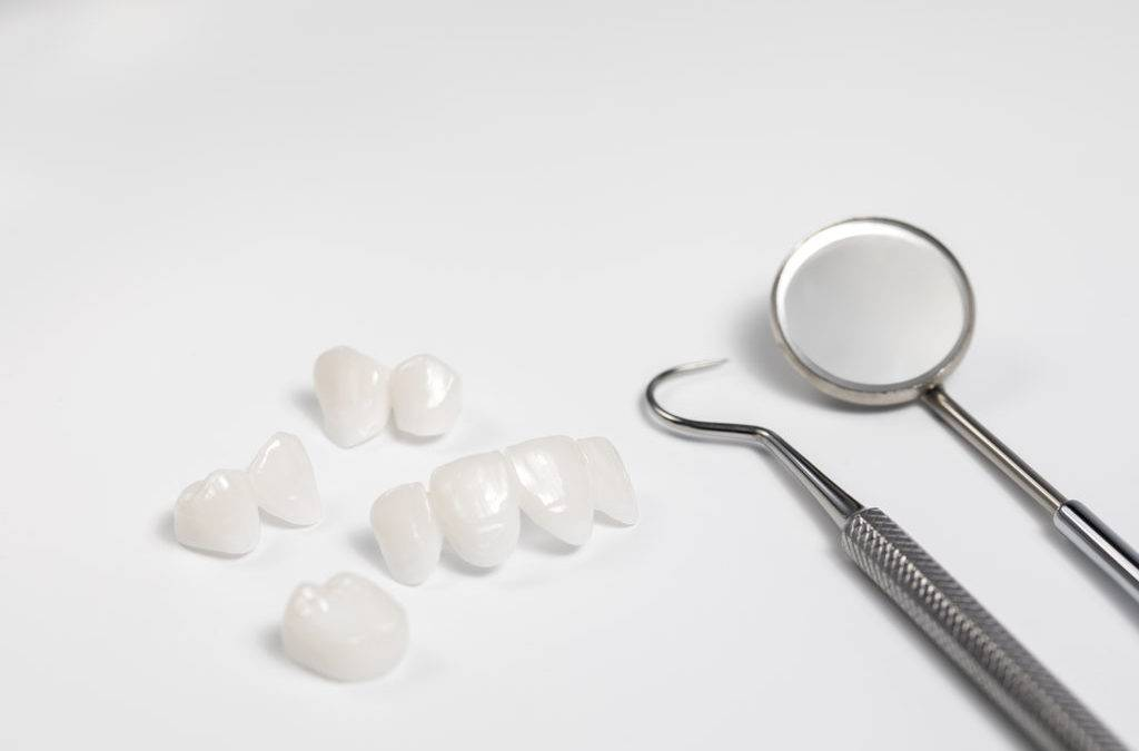 The Benefits Of Porcelain Veneers